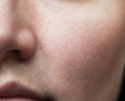 3 astuces naturelles pour resserrer les pores dilatés