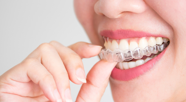 Aligner ses dents à l'âge adulte avec des gouttières Invisalign