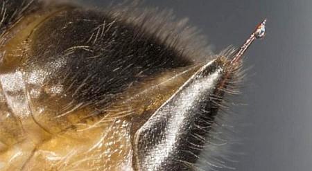 L'Apipuncture, une thérapie au venin d'abeille