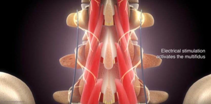 Les douleurs au dos peuvent être invalidantes